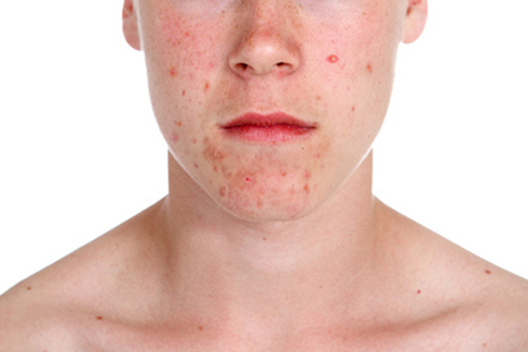 La loción clean clear para la depuración profunda de la persona para la piel sensible