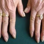 Tratamiento de la artrosis de manos