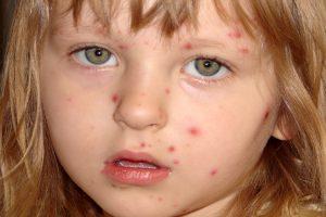 Alergias Alimentarias, causas y tratamiento