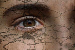 Eccemas, cuando la piel protesta