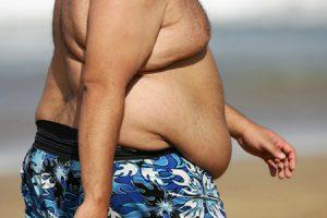 ¿Qué se entiende por obesidad mórbida?