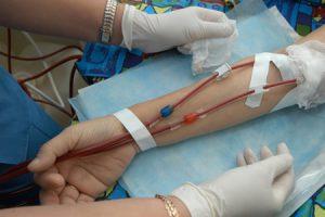 Síntomas de la anemia perniciosa