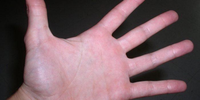 Remedios naturales para la hiperhidrosis palmar