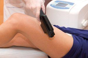 Ventajas de la depilación láser, y sus inconvenientes