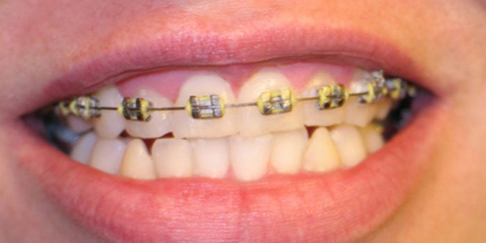 Aclaraciones sobre la ortodoncia