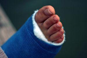 Árnica Montana: remedio para golpes y contusiones
