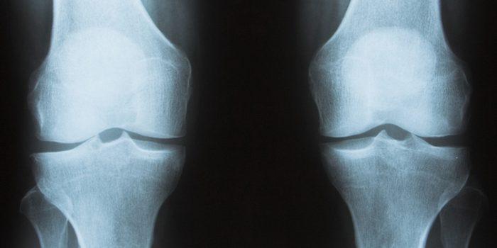 Tratamiento para la Osteoporosis con remedios naturales