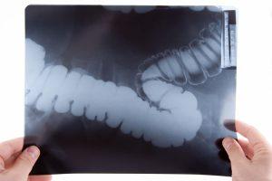 ¿Qué es la enfermedad de Crohn?, causas y consecuencias