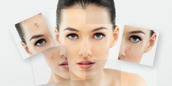 Piel sana con remedios caseros para el acné