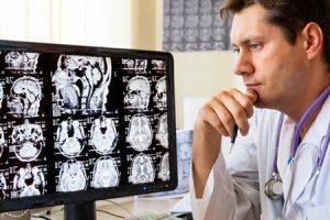 Síntomas de trombosis cerebral y prevención