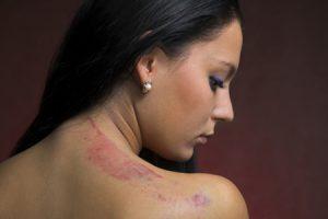 Remedios naturales para eliminar cicatrices