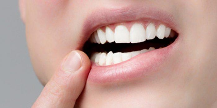 Causa y remedios para labios cortados