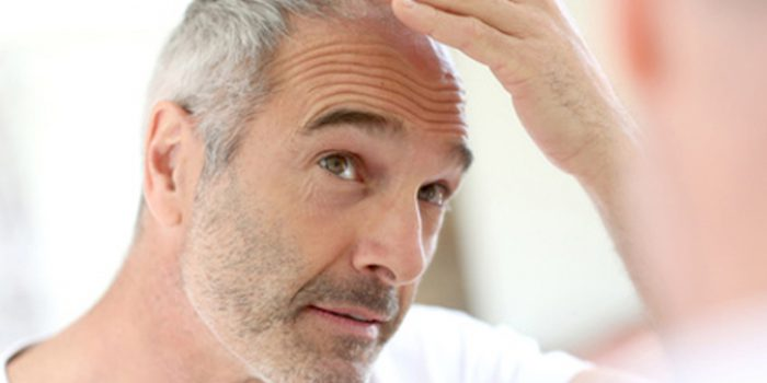 Los implantes capilares, solución eficaz a la calvicie