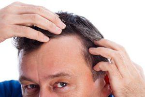 Como evitar la caída del pelo con remedios naturales