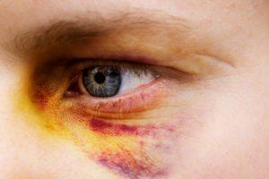 Causas de los ojos morados