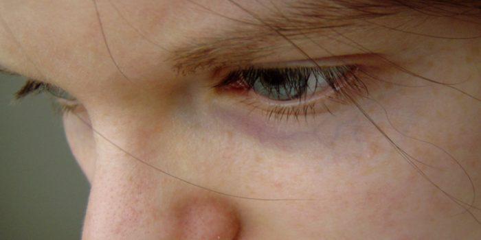 Los adolescentes y sus problemas emocionales