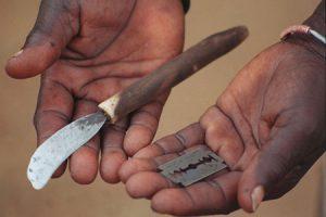 Ablación del clítoris, terrible mutilación
