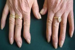 artrosis-de-manos