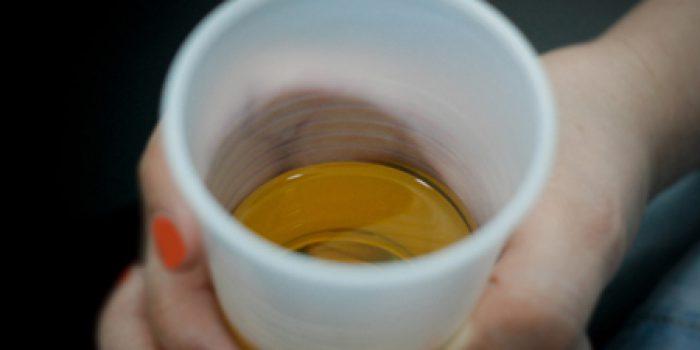 Beneficios de beber orina, Orinoterapia