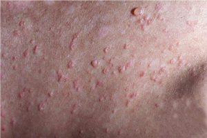 Los indicios atopicheskogo de la dermatitis de la foto