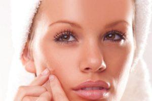 Consejos para saber como eliminar marcas de acné