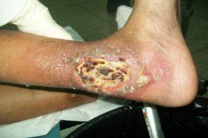 Terapias naturales para el pie de diabético