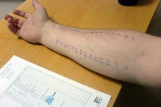 pruebas-alergia