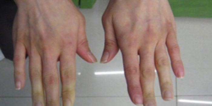 Causas del síndrome de Raynaud