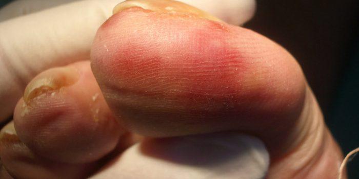 Como curar los sabañones en los pies