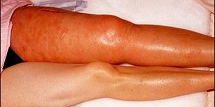 Síntomas de la trombosis, causas y tratamiento