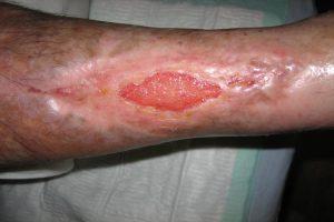 Úlceras vasculares, prevención y remedios naturales