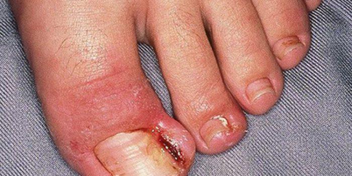 Los mejores remedios para uñas encarnadas
