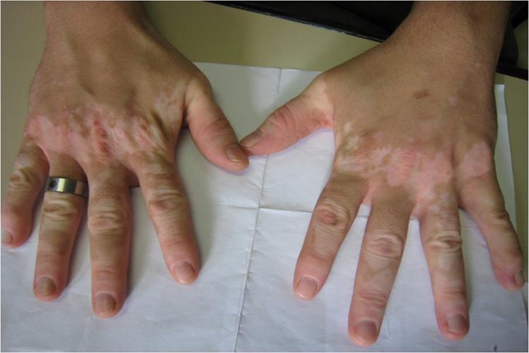 El medio del hongo de la piel entre los dedos de los pies