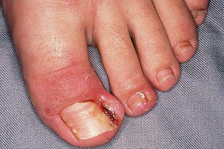 La alergia cerca de las uñas de la causa y el tratamiento a las mujeres