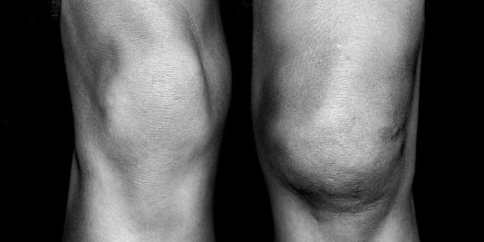 Causas de la artritis reumatoide y tratamientos naturales