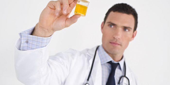 Síntomas de las enfermedades renales