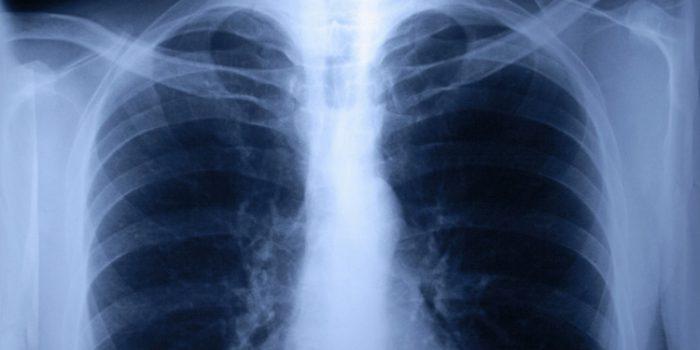 Síntomas de la Fibrosis quística y su tratamiento