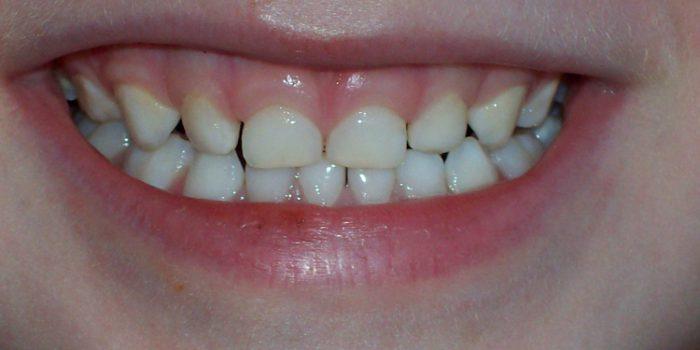 Causas de las manchas blancas en los dientes