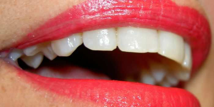 Como blanquear los dientes de forma natural