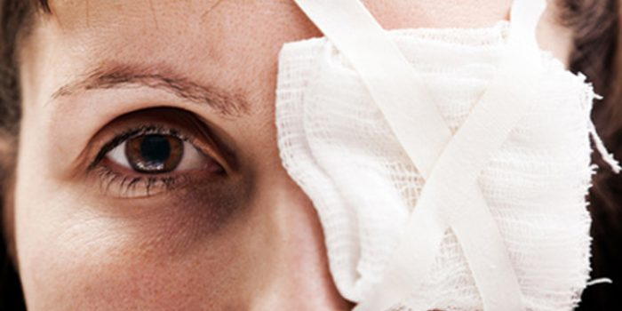 Remedios para el desprendimiento de retina