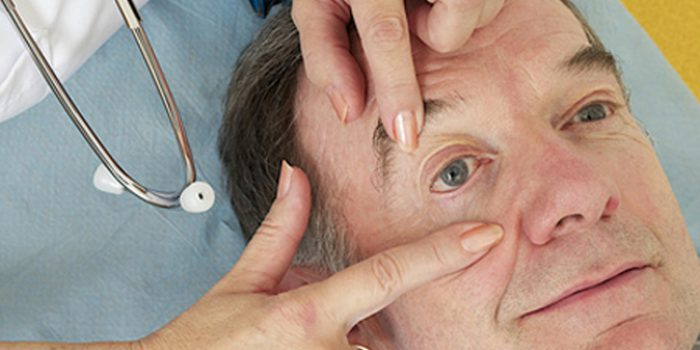 Causas del párpado hinchado, tratamiento natural