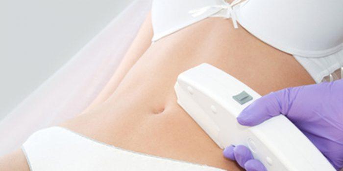 ¿Es peligrosa la fotodepilación en el embarazo?