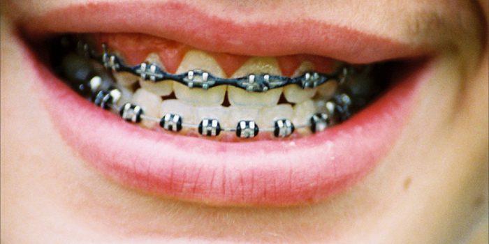 ¿Qué es la Odontología Holística?