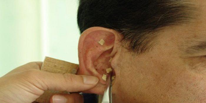 Aplicaciones de la auriculoterapia
