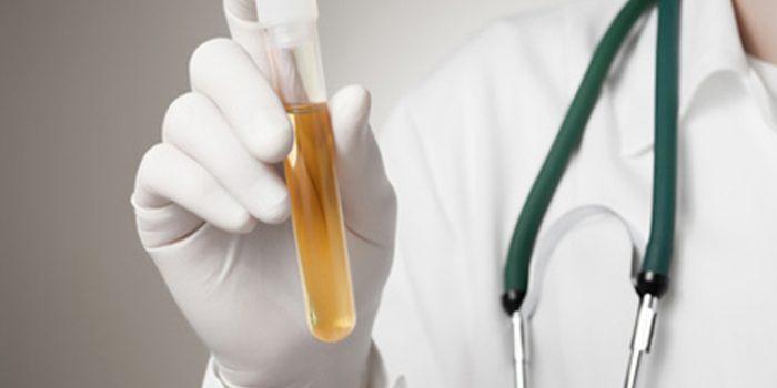 Remedios naturales para los pólipos en la vejiga