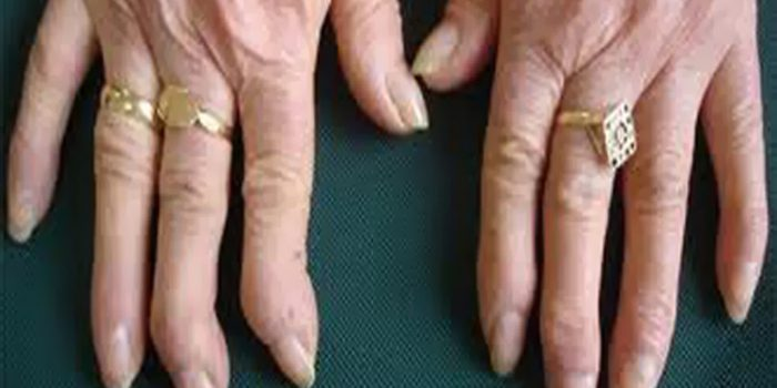 artritis reumatoide tratamiento homeopatico