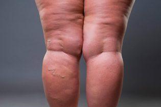 lipedema-en-las-piernas