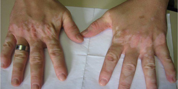 Algunos remedios para las manchas en las manos