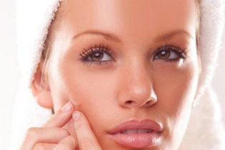 marcas-acne