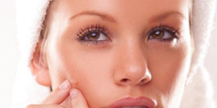 Consejos para saber cómo eliminar marcas de acné